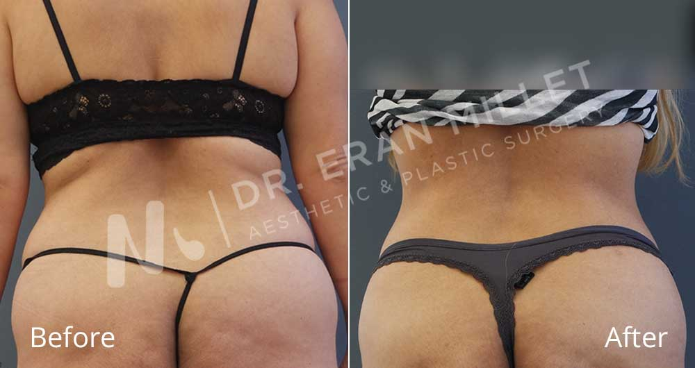 שאיבת שומן לפני ואחרי   דר ערן מילט