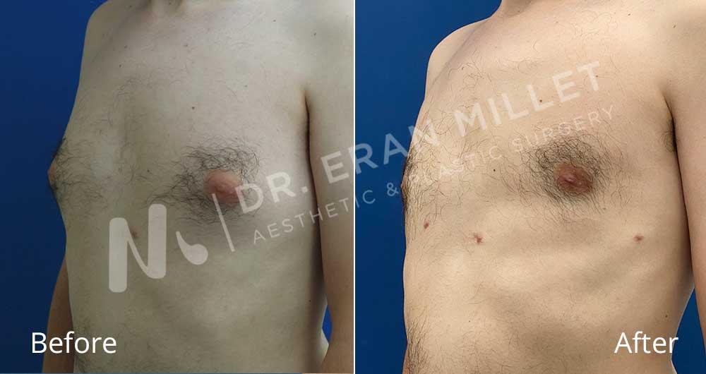 גניקומסטיה - ניתוח הקטנת חזה לגבר לפני ואחרי | דר ערן מילט