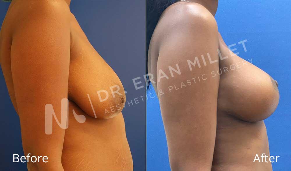 הרמת חזה | ניתוח הרמת חזה תמונות לפני ואחרי