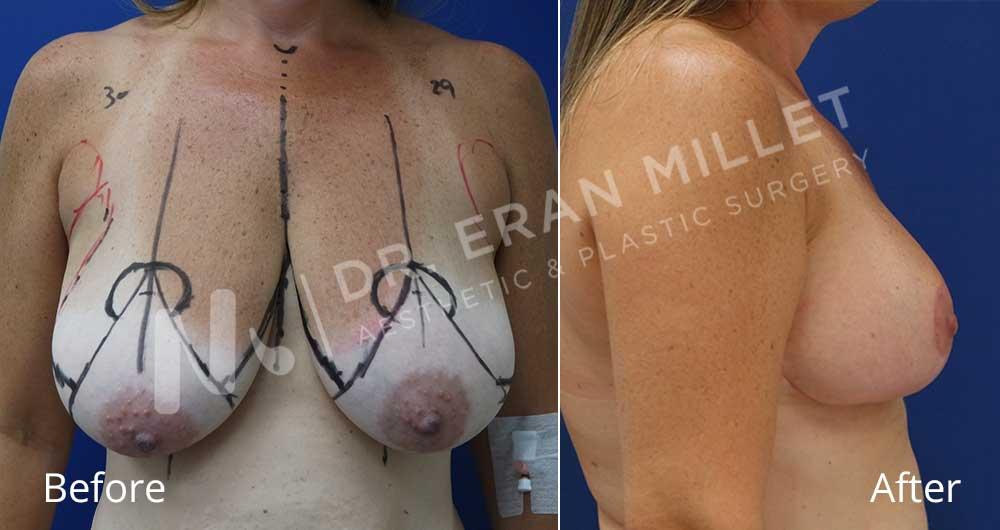 הקטנת חזה | ניתוח הקטנת חזה תמונות לפני ואחרי- דר ערן מילט