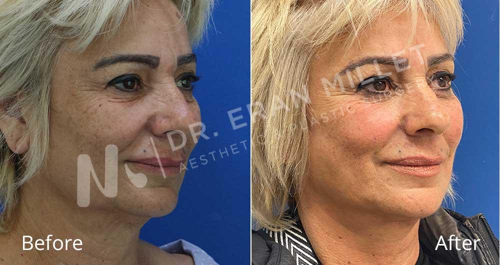 מתיחת פנים   ניתוח פנים לפני ואחרי   מנתח פלסטי דר ערן מילט