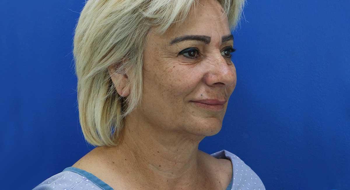 מתיחת פנים | ניתוח מתיחת פנים על ידי פלסטיקאי מומחה דר ערן מילט